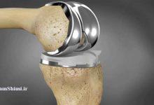 درمان شکستگی استخوان با استفاده از نانوذرات مغناطیسی