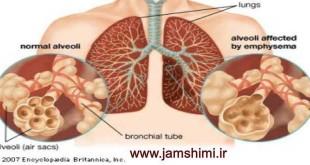 آمبولی و اثر فشارهوا بر ریه های غواصان